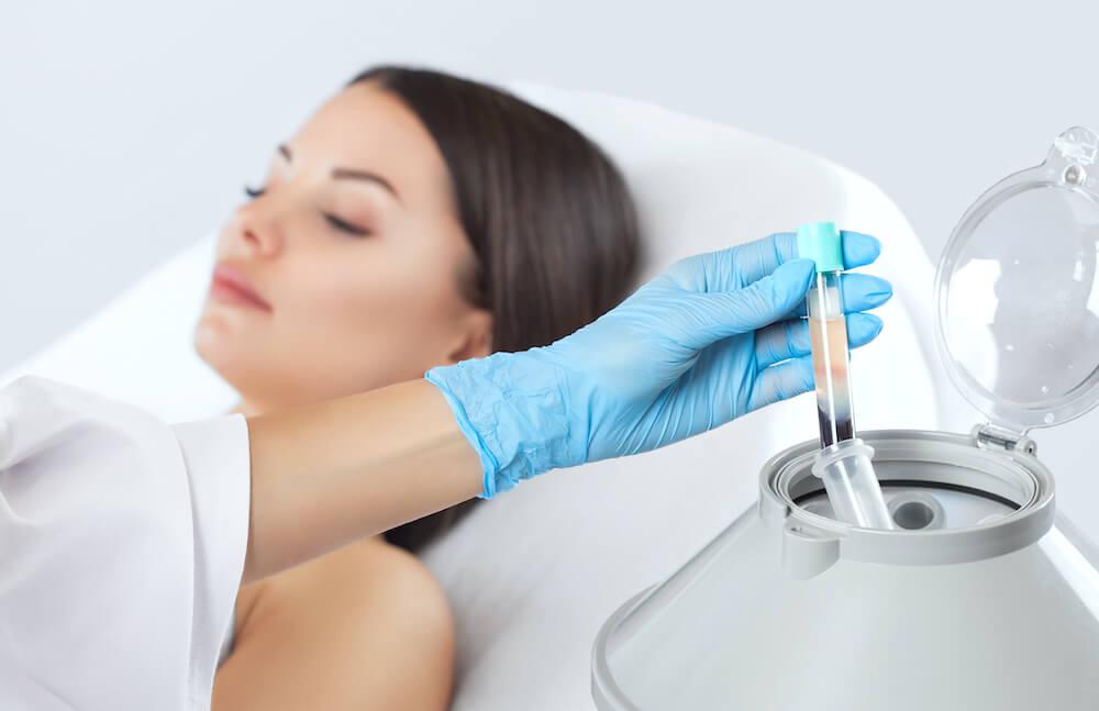 Tratamiento estetico con plasma rico en plaquetas